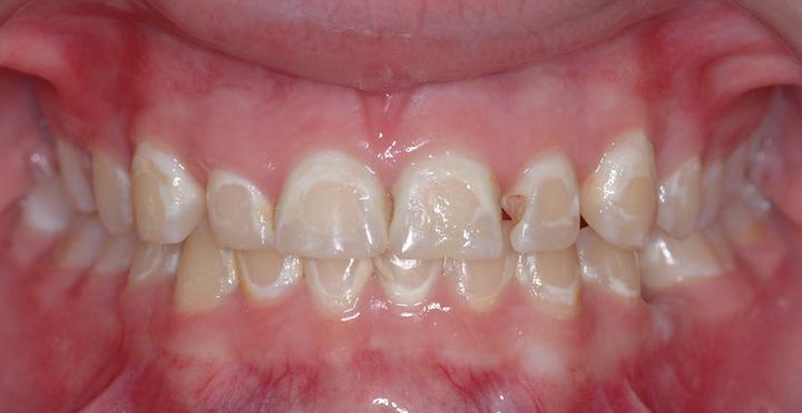 braces decalcification dr eric jackson
